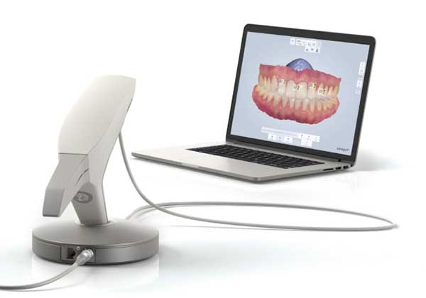 Trios dental crown scanner