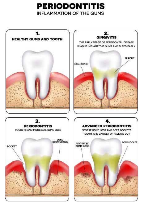Periodontitis disease stages