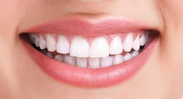 after professional teeth whitening