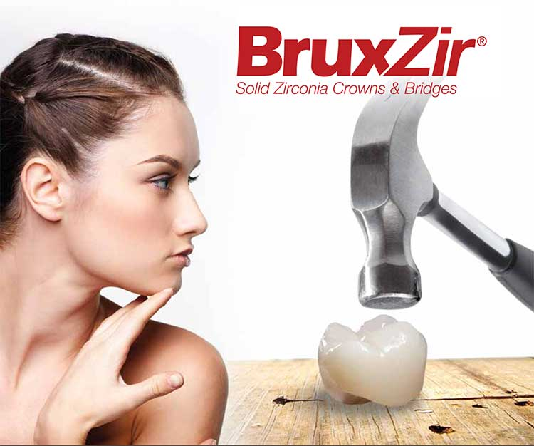 Bruxzir dental crown