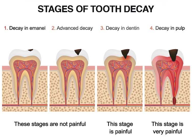 cavity treatment