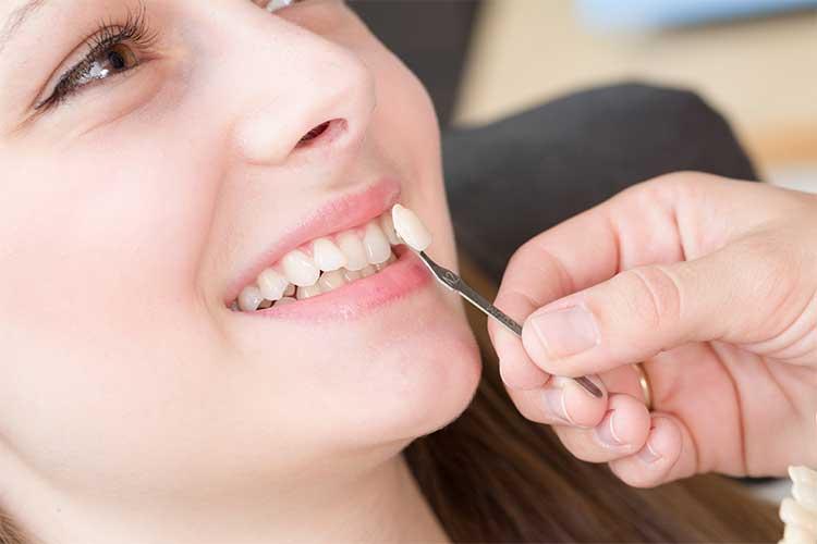 dental veneers chattanooga