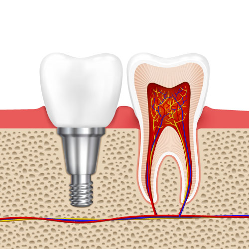 dental implant dentist Chattanooga TN