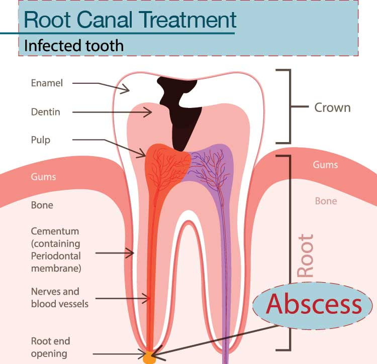 root canal treatment dentist Chattanooga, TN