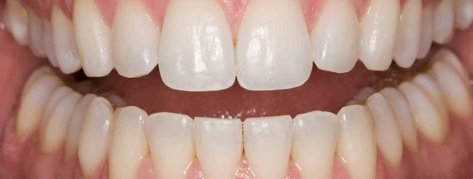 Teeth whitening results after