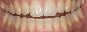 Teeth whitening before treatment