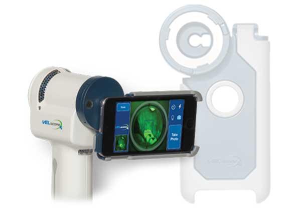 velscope oral cancer tester