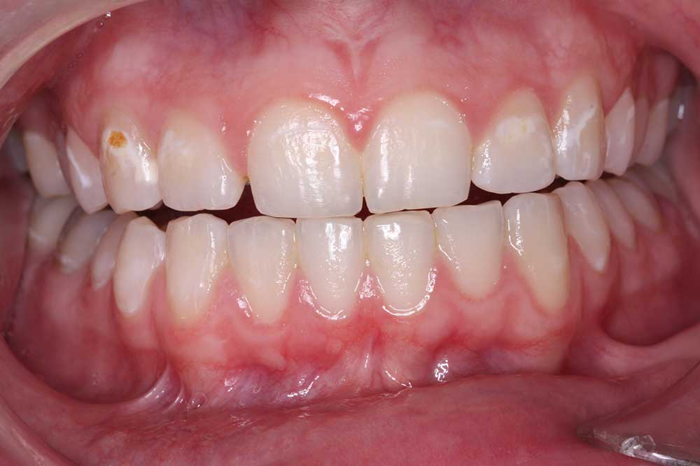 before veneers case study