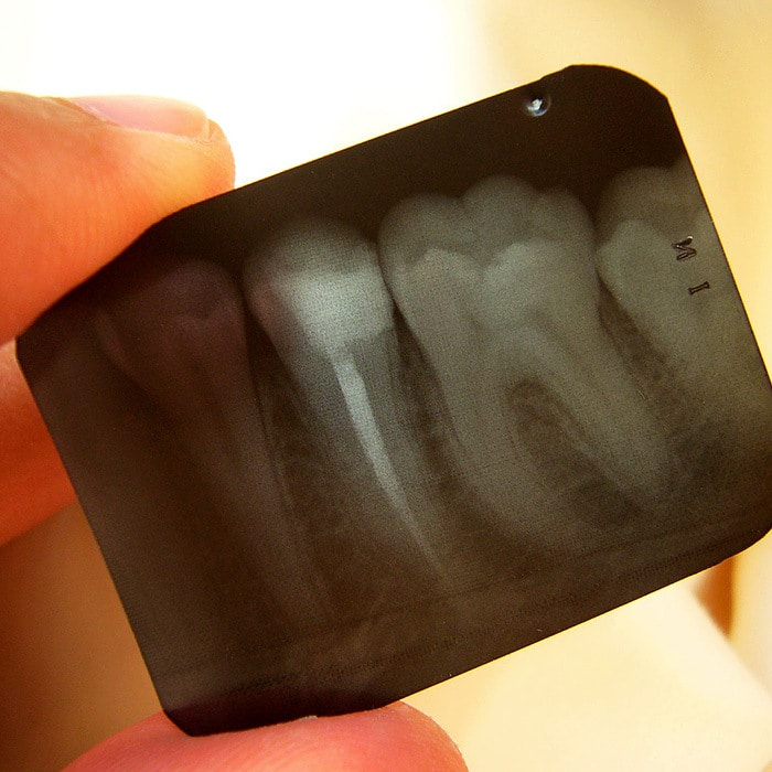 dental x-rays explained