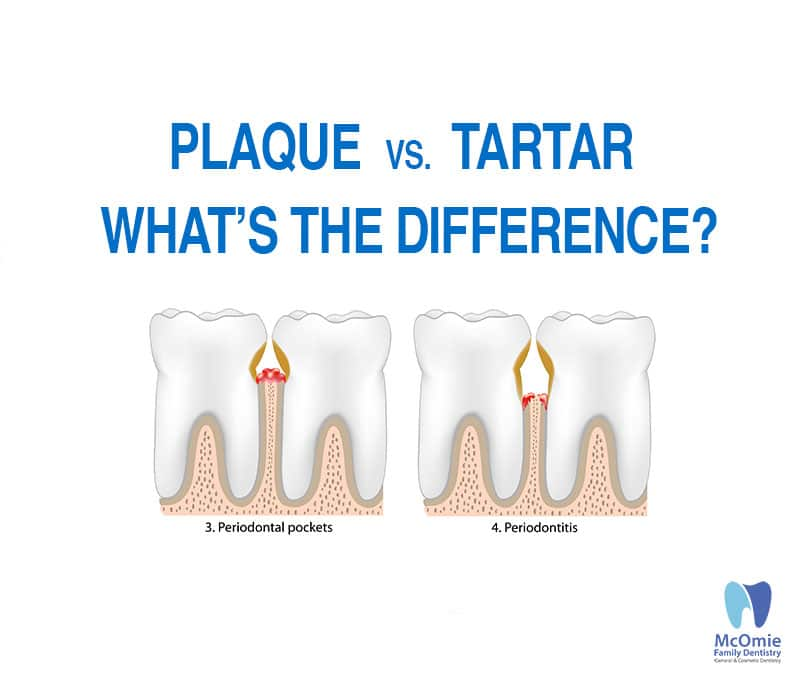 differences between dental plaque and tartar