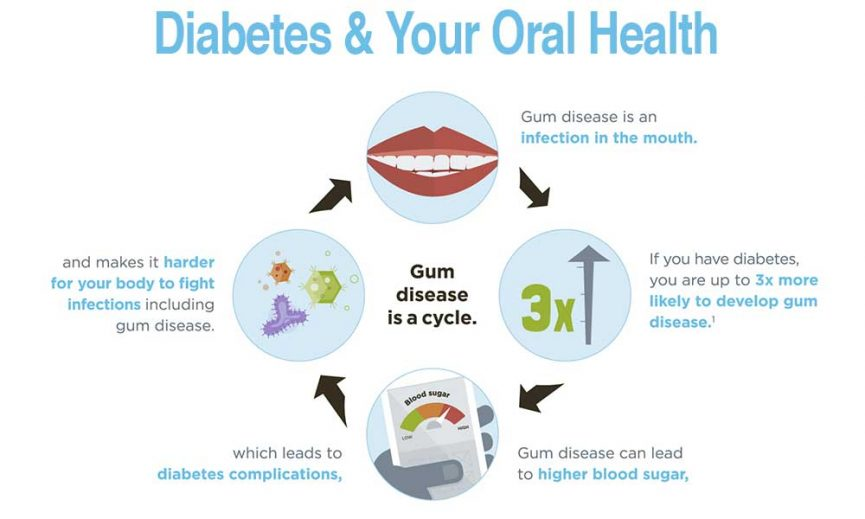 Diabetes and Your Oral Health - McOmie Family Dentistry