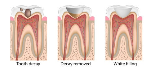 Dental tooth filling