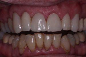 After veneer treatment retracted view