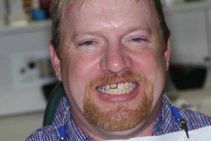 teeth before dental veneers