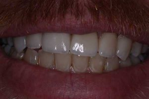 after dental veneer procedure