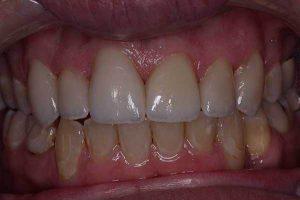 up close teeth dental veneers