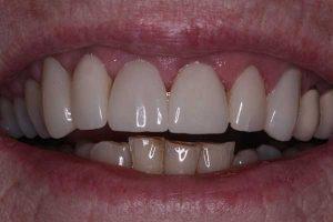 After Veneers Smile