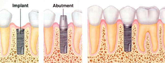 dental implant for broken tooth