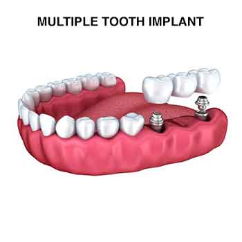 multiple teeth dental Implant