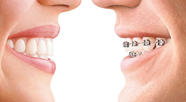 orthodontic clear aligners to straighten teeth