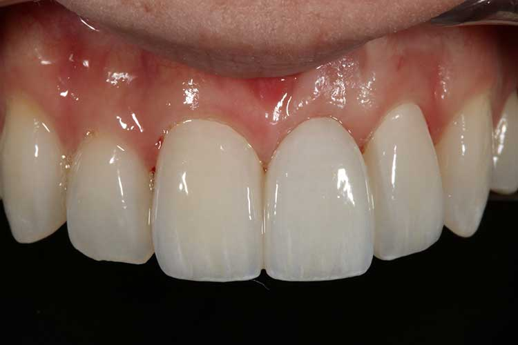 after dental bridge