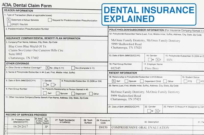 dental insurance explained