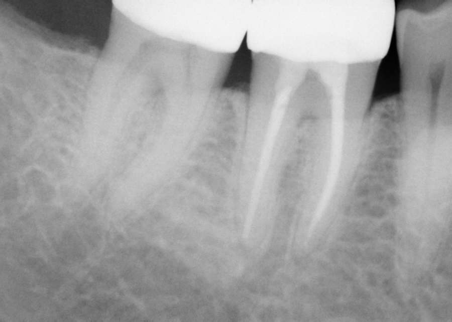 Save That Tooth With A Root Canal - McOmie Dentistry