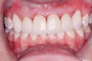 after dental veneers front teeth