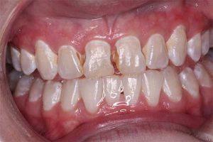 before dental veneers front teeth