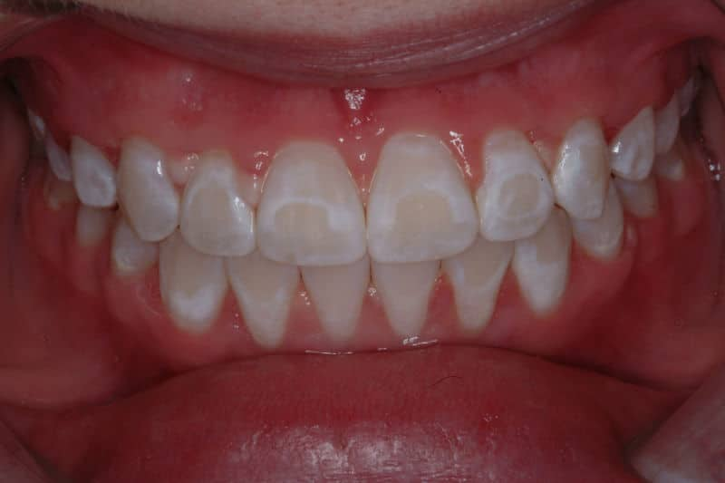 Image result for white spots on teeth