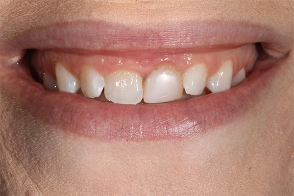 before gingival re-contouring