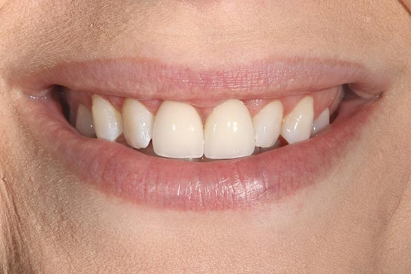 after gingival re-contouring