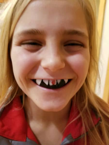 fang mouth guard